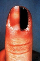 Web_Melanom_am_finger_01.jpg